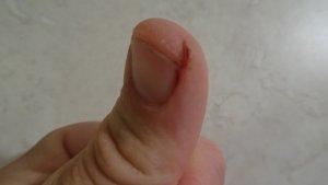 Rissige Finger