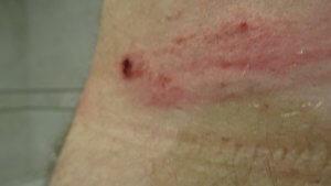 Wunde Haut an der Hüfte